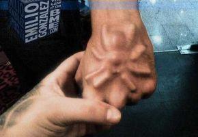 Gruselige Implantate