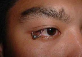 Wie wär's mit einem Augenpiercing?