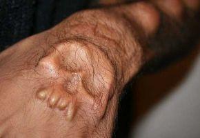 Verrückte Implantate