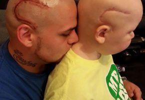 Dad läßt sich die OP-Narbe seines Sohnes stechen