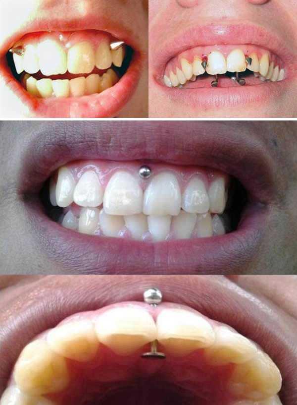 a98939_mouth-piercing_10-gum