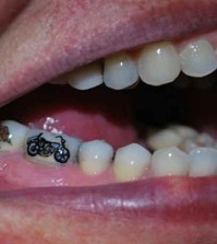 Tattoo-Tooth-003